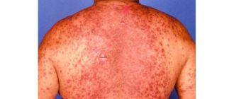 dermatografia malattia